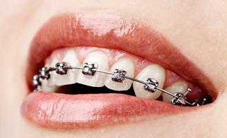 Damon-braces-smile