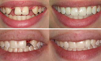 dental-implant-before-after